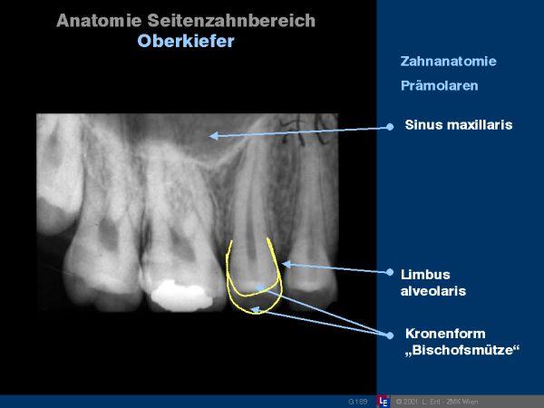 Anatomie Seitenzahnbereich Oberkiefer