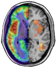 Functional and Multimodal Neuroimaging • PET & fMRI | Cooperations