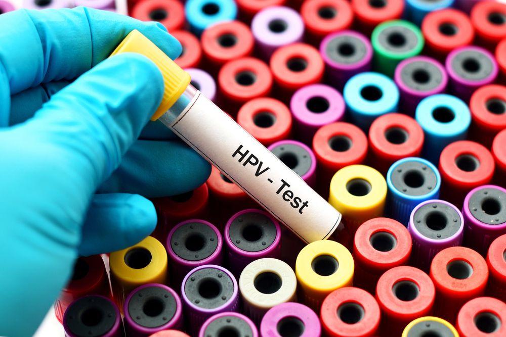 hpv impfung wien studenten)